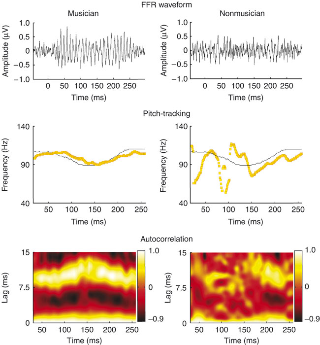 Musical experience shapes human brainstem encoding of linguistic pitch patterns