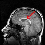 Mri_brain_side_view-emphasizing-corpus-callosum