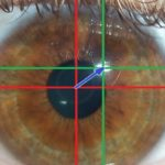 Pupil dilation measurement